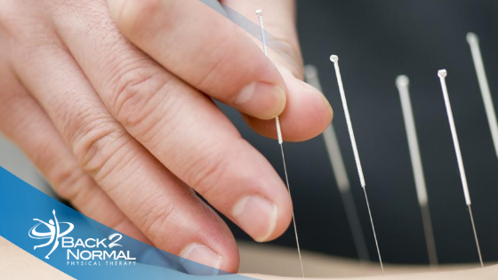 Lose the Muscle Pain: Dry Needling is HERE!